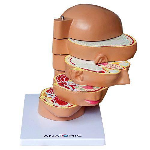 Cabeça em Disco, Corte Axial, em 5 Partes Modelo Anatômico