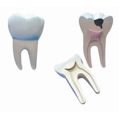 Dente Molar Ampliado - Saudável e com Cáries Anatomic - Tgd-0311-b