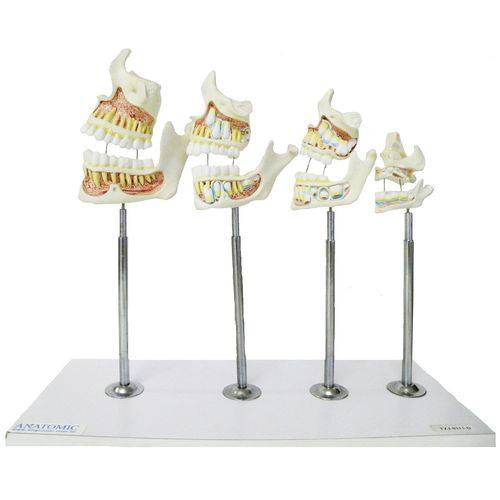 Desenvolvimento da Dentição Anatomic - Tzj-0313-d
