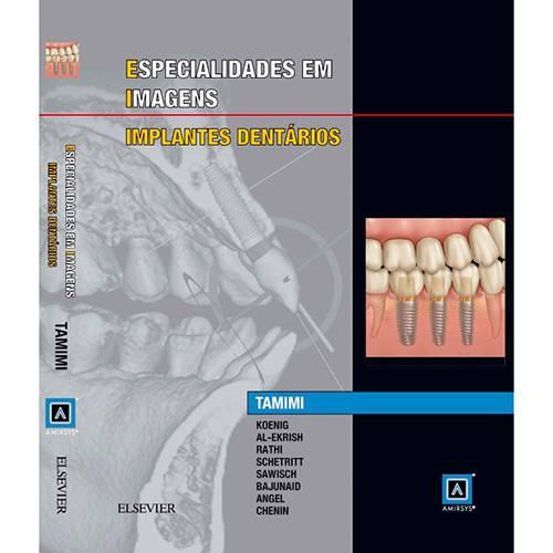 Livro - Especialidades em Imagens: Implantes Dentarios