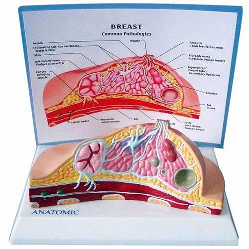 Modelo de Mama com Patologias - Anatomic - Tgd-0323-o