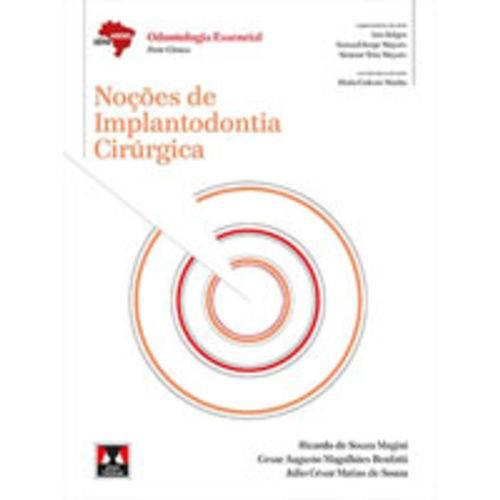 Noçoes de Implantodontia Cirurgica