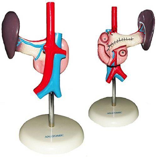 Pâncreas e Duodeno Anatomic - Tgd-0325-e