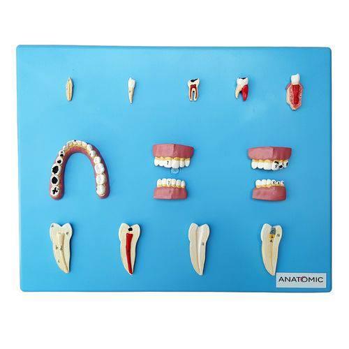 Placa com Doenças Dentárias 12 Peças