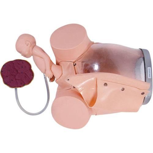 Simulador de Parto com Cervix, Episiotomia e Feto com Placenta Anatomic - Tgd-0374-e