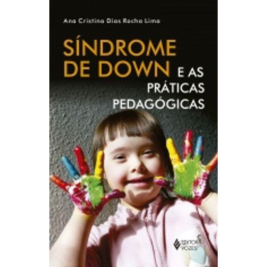Sindrome de Down - Vozes