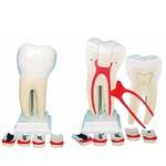 Dente Molar Ampliado 8 Partes com Evolução da Cárie Anatomic - Tgd-0311-g