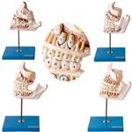 Dentição em 4 Peças Desenvolvimento dos Dentes Modelo Anatômico