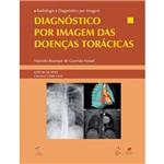 Diagnóstico por Imagem das Doenças Torácicas