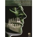 Livro - Atlas de Implantes Cone Morse - da Cirurgia à Prótese