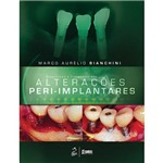 Livro - Diagnóstico e Tratamento das Alteracoes Peri-Implantares