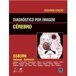Livro - Diagnóstico por Imagem : Cérebro
