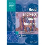 Livro - Head And Neck Câncer Imaging