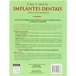 Livro - Implantes Dentais Contemporâneos