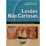 Livro - Lesões não Cariosas: o Novo Desafio da Odontologia