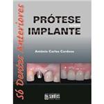 Livro - Prótese Sobre Implante: só Dentes Anteriores