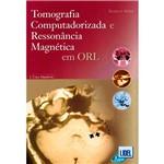 Livro - Tomografia Computadorizada e Ressonância Magnética em ORL