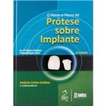 O Passo a Passo da Prótese Sobre Implantes: da 2ª Etapa Cirúrgica à Reabilitação Final
