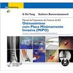 Osteossintese com Placa Minimamente Invasiva Mipo