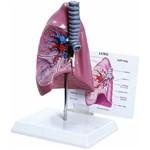 Pulmão com Traquéia e Prancha Explicativa Anatomic - Tgd-0319-b