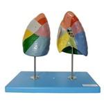 Pulmão Segmentado Colorido Modelo Anatômico
