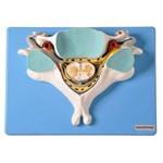 Quinta Vértebra Cervical C/ Medula Espinhal e Nervos Modelo Anatômico
